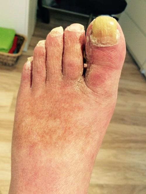 hård hud fødder